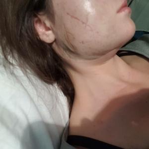 Молодая запорожанка, изуродованная кислотой, дала интервью (ФОТО 18+) - 16.11.2018, 16:20