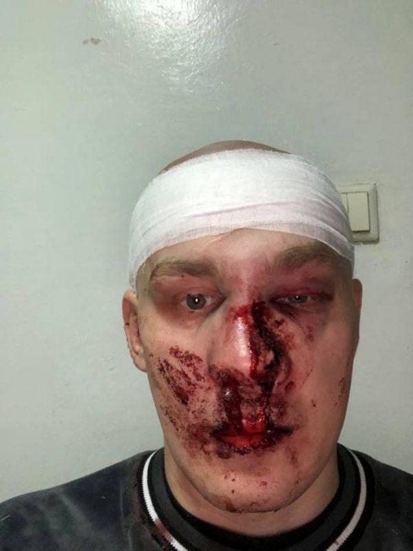 Экс-главу Восточного корпуса избили в Харькове (Фото)