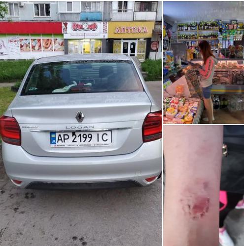 В Запорожье автоледи укусила маму ребенка, которого она едва не сбила (ФОТО)