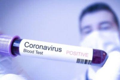 kilkist-hvorih-na-koronavirus-v-ukrad197ni-majzhe-dosyagla-12-tisyach-osib.jpg