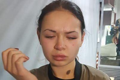 krovavoe-dtp-v-harkove-s-zaytsevoy-pered-nachalom-suda-razgorelsya-skandal-video.jpg