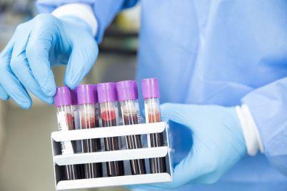 laboratornij-czentr-v-zaporizkij-oblasti-zafiksuvali-24-koronavirusni-vipadki.jpg