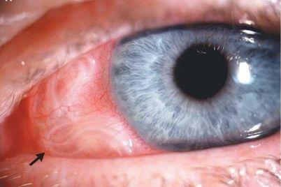 redkij-diagnoz-v-zaporozhe-u-muzhchiny-nashli-parazitov-v-glazu-moz.jpg