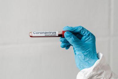 sredi-novyh-zabolevshih-koronavirusom-v-zaporozhskoe-oblasti-troe-voennosluzhashhih.jpg