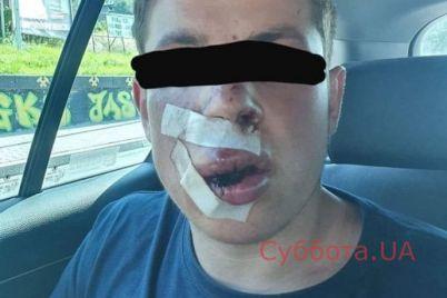 studenta-iz-ukrainy-zhestoko-izbili-za-graniczej-foto.jpg