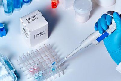 test-na-koronavirus-v-zaporizhzhi-de-zrobiti-i-skilki-cze-koshtud194.jpg