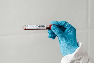 v-energodare-rekordnyj-prirost-zabolevshih-koronavirusom-v-gorode-usilili-karantin.jpg