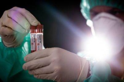v-moskve-menyayut-shemu-postanovki-diagnoza-koronavirusnaya-infekcziya.jpg