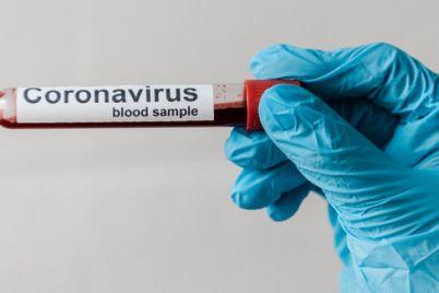v-voinskoj-chasti-zaporozhya-u-treh-voennosluzhashhih-podtverdilsya-koronavirus.jpg