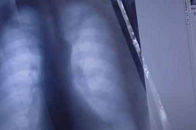v-zaporizhzhi-vidbulasya-akcziya-na-pidtrimku-hvorih-tuberkulozom.jpg