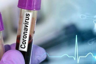 v-zaporozhskoj-merii-rasskazali-kuda-zvonit-za-konsultacziej-i-pomoshhyu-pri-koronaviruse.jpg