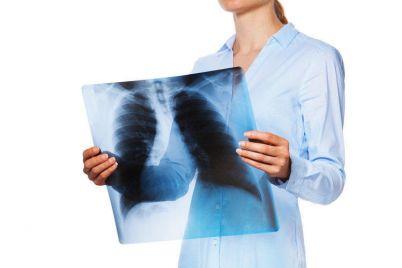 v-zaporozhskoj-oblasti-obnaruzhili-otkrytuyu-formu-tuberkulyoza.jpg