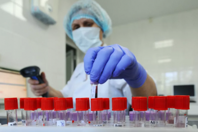 v-zaporozhskoj-oblasti-zaregistrirovano-382-sluchaya-zarazheniya-koronavirusnoj-infekcziej.png