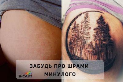zaporozhczam-postradavshim-ot-nasiliya-ili-selfharma-predlagayut-perekryt-shramy-tatuirovkoj.jpg